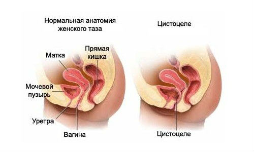 Болезни мочевого пузыря у женщин — симптомы и лечение болезни. Кишечник давит на мочевой пузырь у женщин