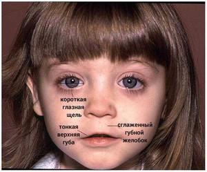Алкогольный синдром плода: эмбриофетопатия и внешность ребенка. Алкогольная фетопатия – негативные исходы для малыша