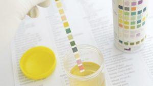 Тест полоски для измерения сахара в моче. Тест полоски для определения сахара в моче