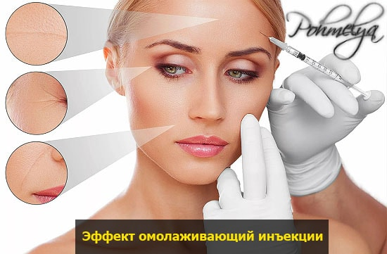 effect biorevitalizacii pohmelya v2398 min