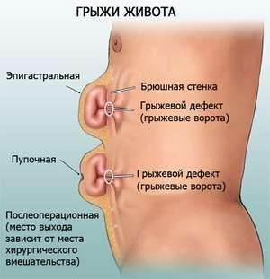 Грыжа после лапароскопии: почему возникает, признаки и симптомы, методы лечения. Грыжа после лапароскопии желчного пузыря
