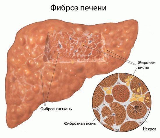 Токсический гепатит: что это такое, причины, симптомы