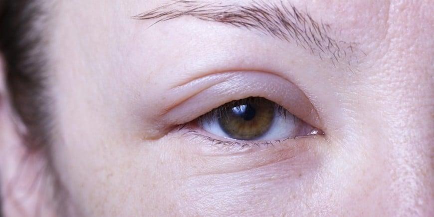 Ефективні методи усунення похмільного набряку обличчя