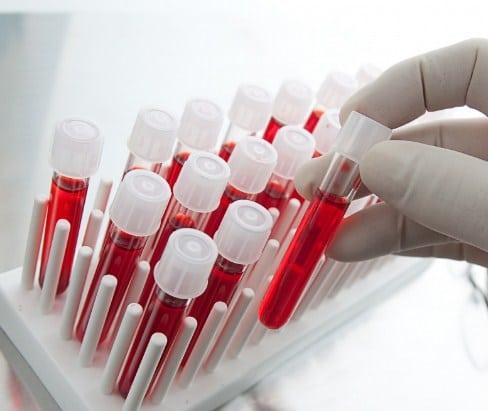 Медотвод от прививок 2-я Чоботовская аллея иммуноферментный анализ крови в москве