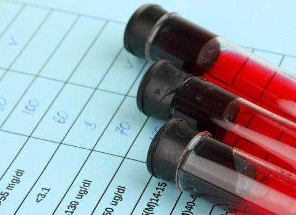 Влияние алкоголя на анализ крови. Через сколько дней после ...